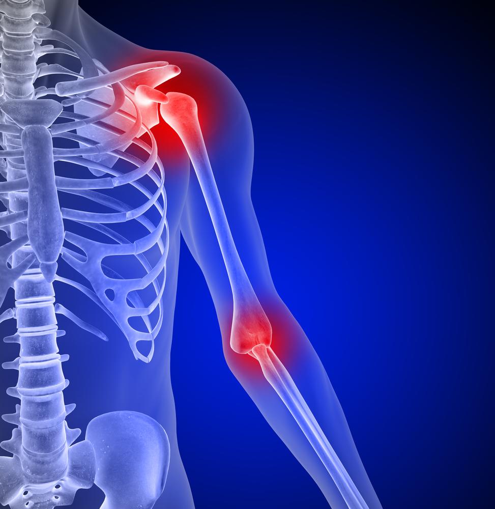 Evitar el dolor de hombro en calistenia